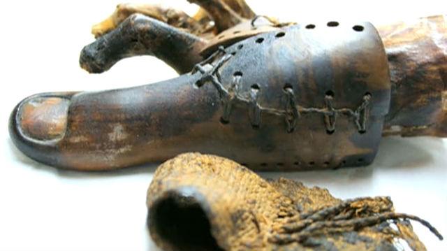 Älteste Prothese der Welt entdeckt