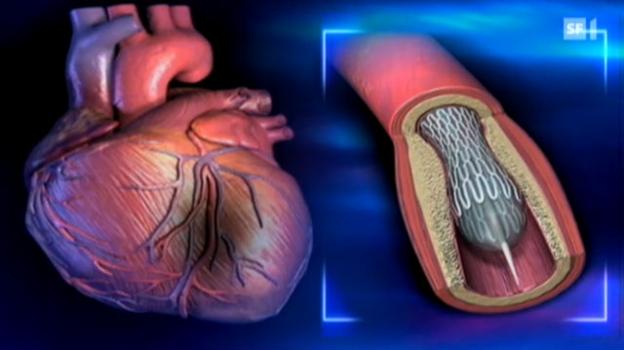 Video «Leben nach dem Herzinfarkt» abspielen