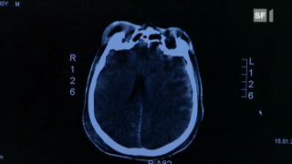 Video «Was ist ein Schädel-Hirntrauma?» abspielen