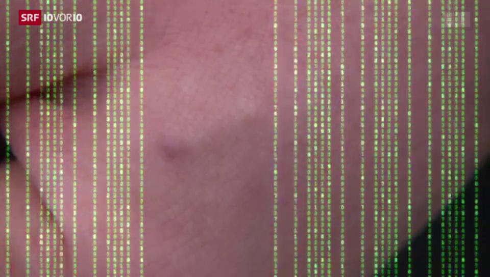 Mikrochip unter der Haut