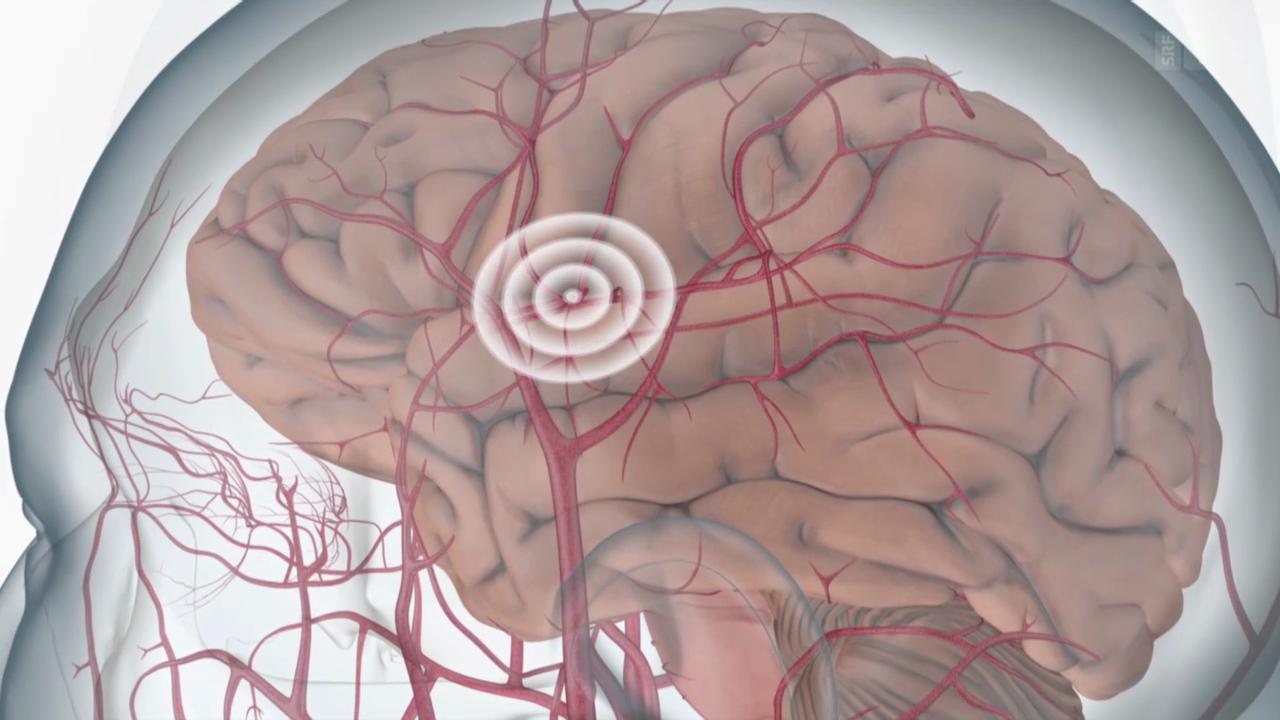 Körper & Geist - TIA – Möglicher Vorbote des Schlaganfalls - Puls - SRF