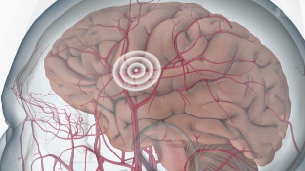 Video «Ursachen und Symptome» abspielen