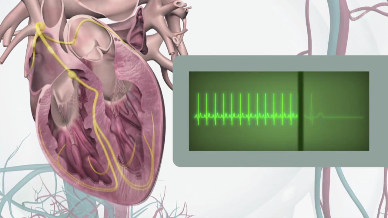 Herzrasen - Unangenehm, aber gefährlich?