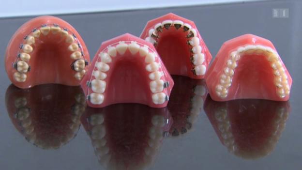 Video «Immer mehr Erwachsene tragen Zahnspange» abspielen