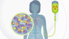 Video «So funktioniert die Stammzelltherapie» abspielen