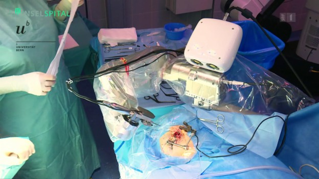 Video «Roboter hilft bei Ohren-Operation» abspielen