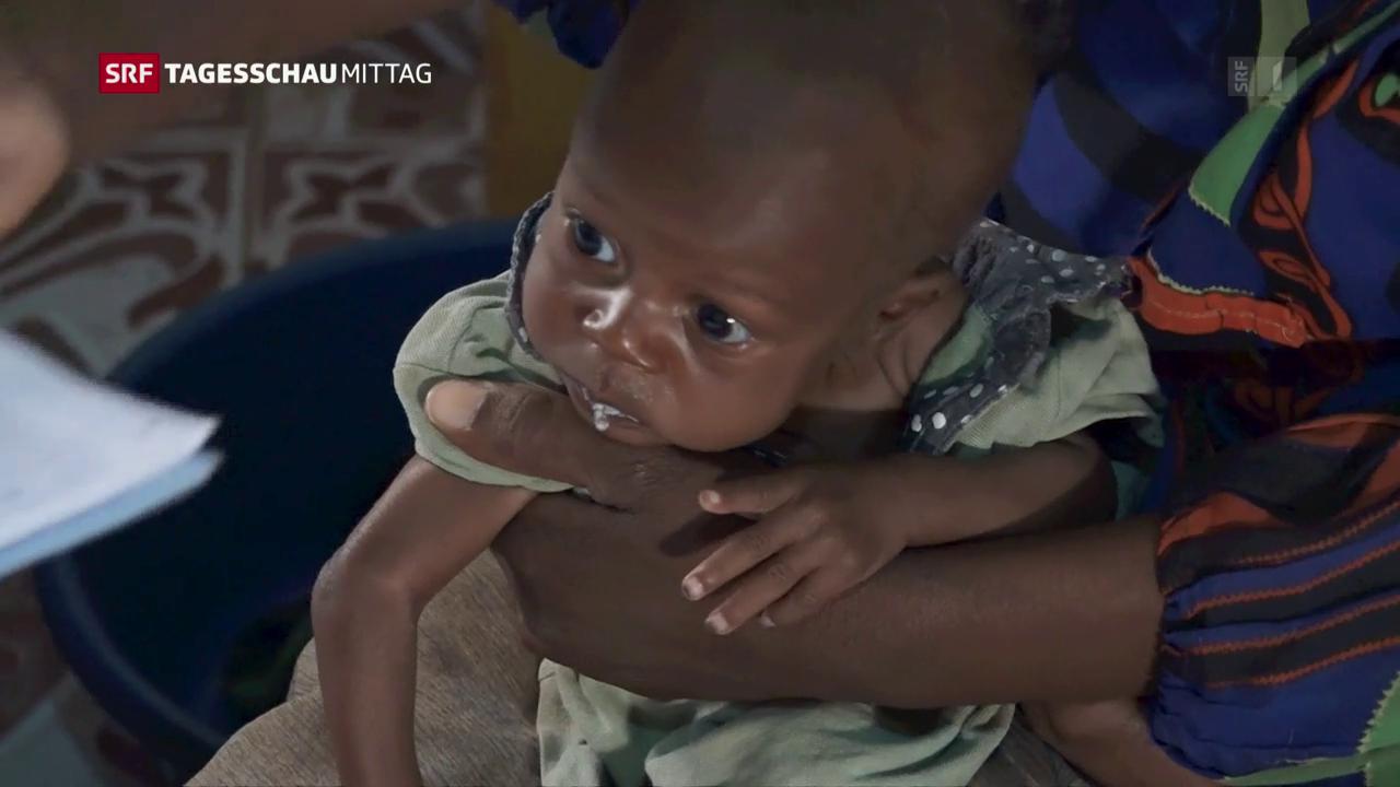 Spital für unterernährte Kinder in Somalia