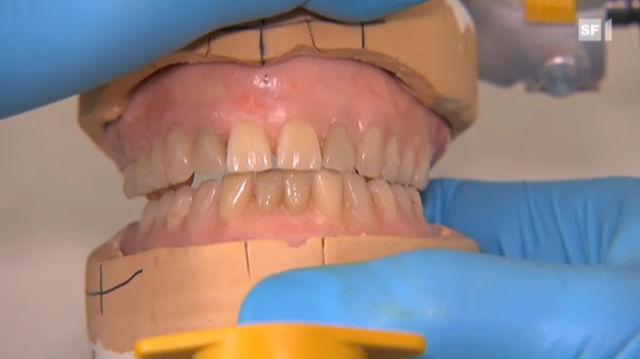 Abnehmbarer Zahnersatz bewährt sich noch immer