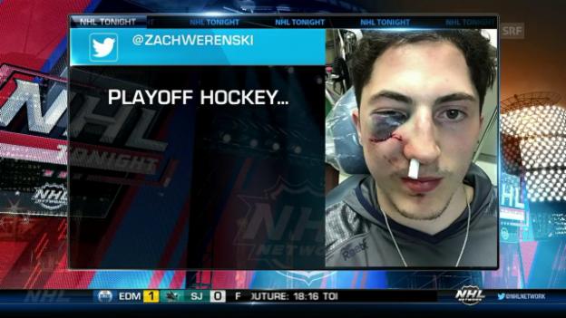 Video «Zach Werenski wird von Puck getroffen» abspielen
