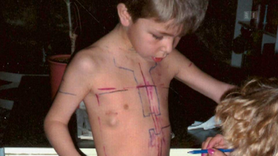 Noch bevor Basil Christen zur Schule ging, standen bei ihm Chemotherapie und Bestrahlung auf dem Programm.