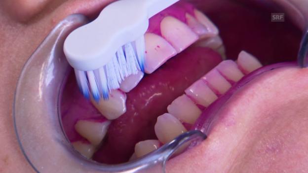 Video «Schallzahnbürste richtig nutzen» abspielen