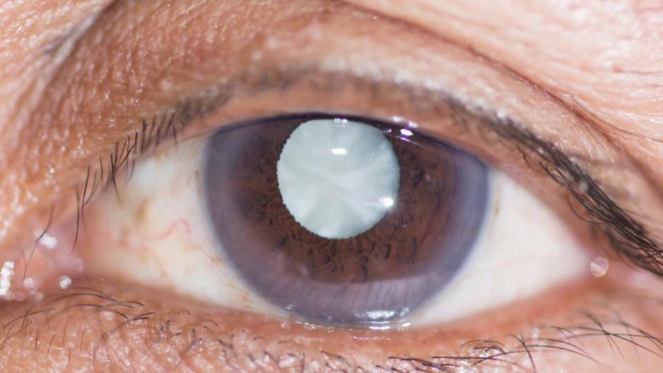 Augentropfen gegen Grauen Star?