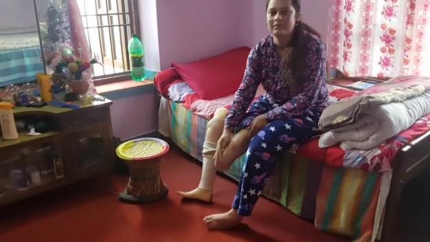 Video «Die 21-jährige Uma lebt mit einer Unterschenkelprothese» abspielen
