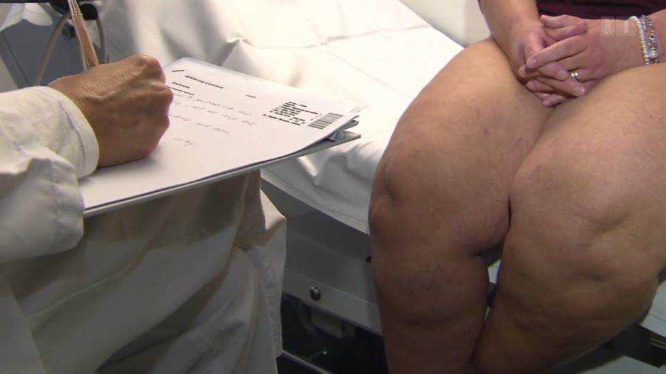 Lipödeme – Der Fluch der dicken Beine