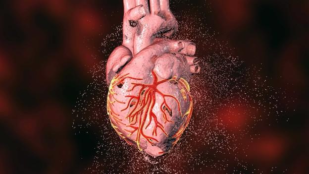 Verengte Herzgefässe – Neue Chance für Problemfälle